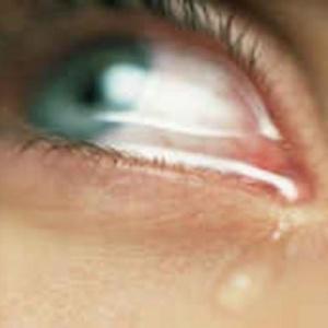verkti